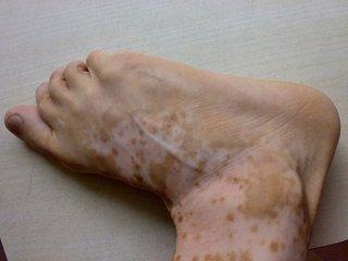 小腿白色的斑点原因
