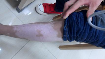 腿部白癜风症状