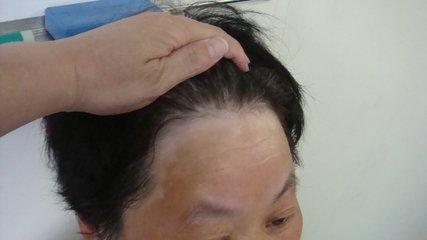 头部患有白癜风怎么护理