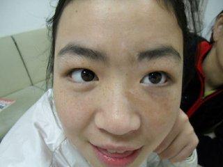 女性白癜风护理