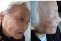老年白癜风病情加重有什么症状