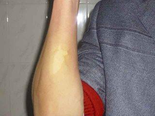 手臂上白癜风发痒是什么原因导致的
