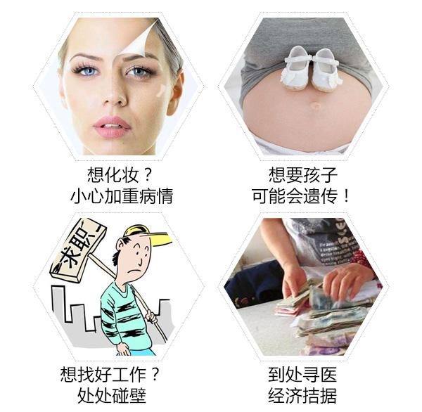 白癜风对脸部的伤害