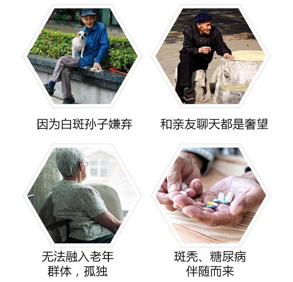 白癜风对老年人的影响