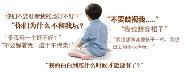 白癜风对儿童有何危害?