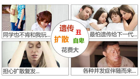 白癜风对患者的危害有哪些