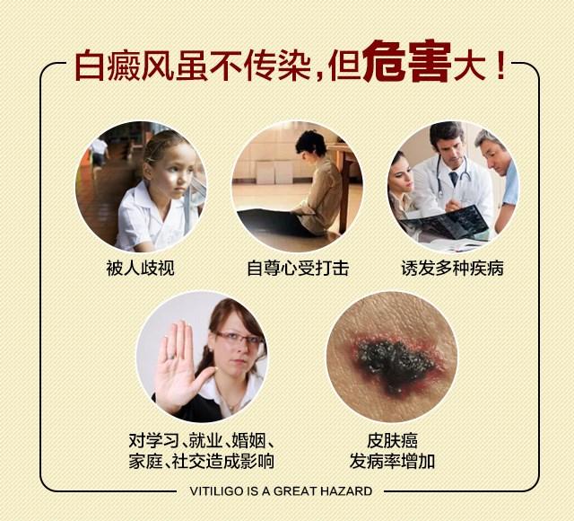 苏州白癜风医院强调得了白癜风不治疗影响很大