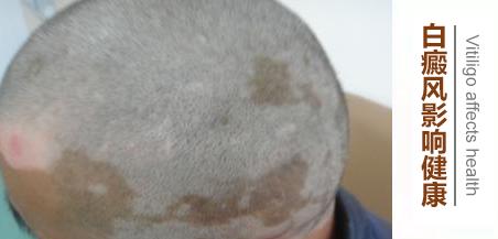 头上长有白癜风会造成哪些危害?