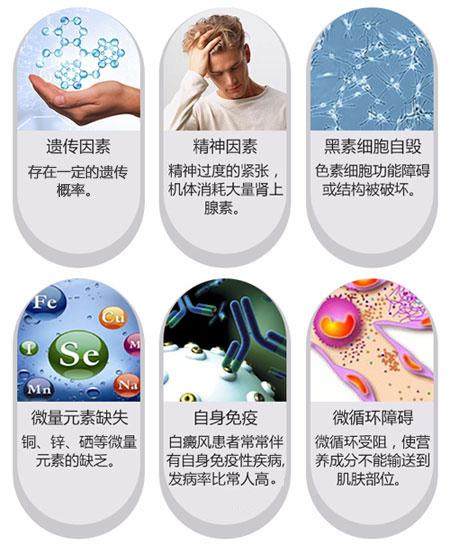 淮安白癜风发病率持续上升的原因有哪些