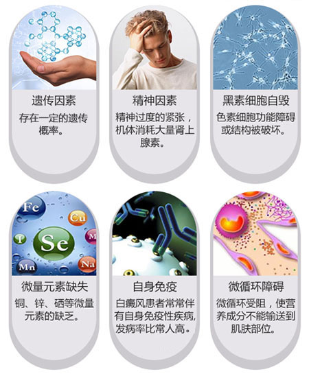 苏州中年人白癜风的病因是什么