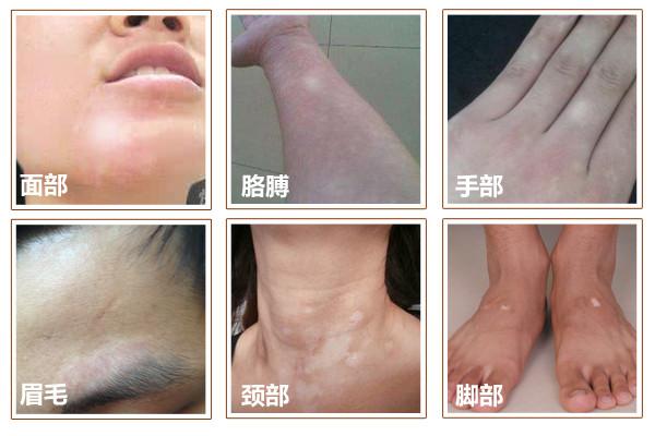 苏州白癜风颈部治疗