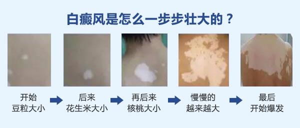 苏州白癜风医院讲述背部白癜风的护理问题