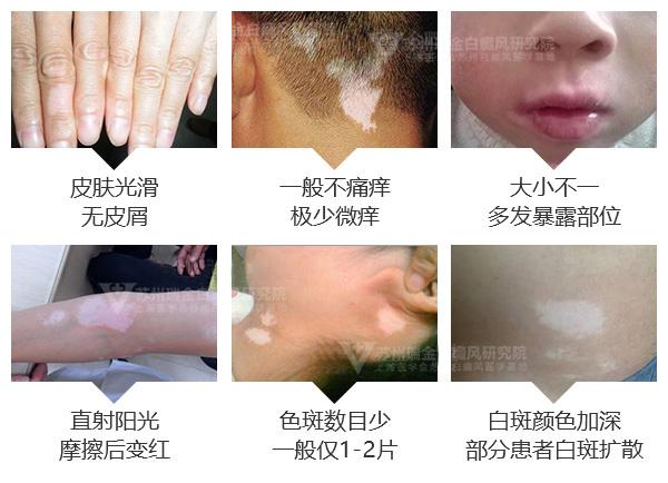 面部白斑病初期症