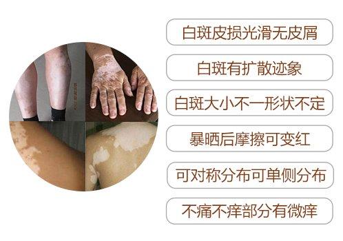 白癜风早期症状