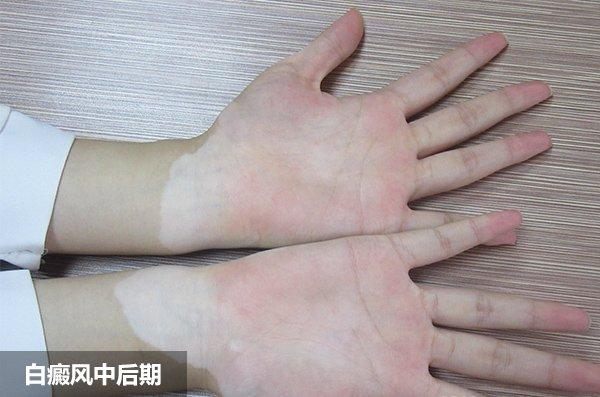 手部白癜风危害有哪些?