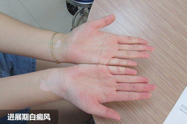 手部出现白斑要怎么办