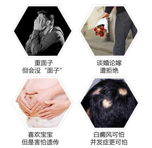 苏州冬季白癜风患者喜欢宅在家有影响吗