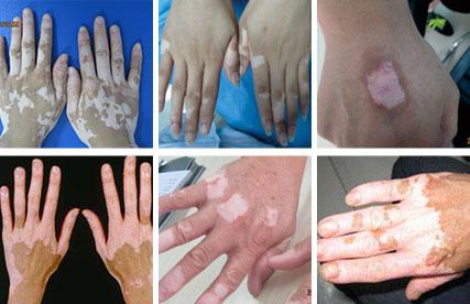 皮肤上的白斑治疗
