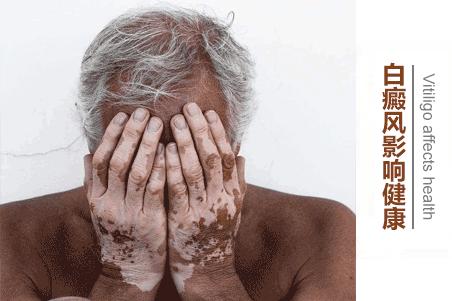 老年白癜风防护