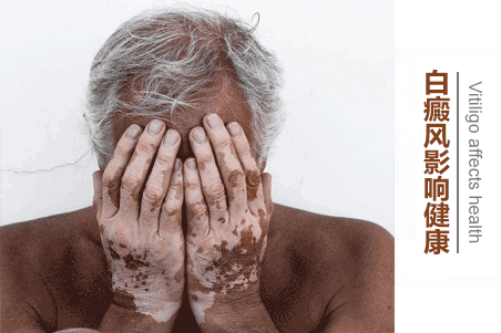老年白癜风危害