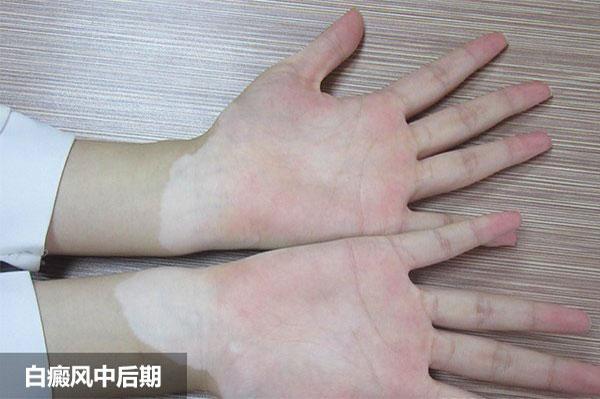 手臂上的白斑治疗多久能消失