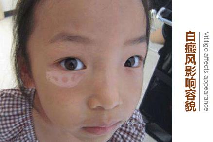 脸上有白斑是白癜