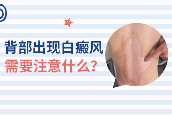 白癜风腰部治疗
