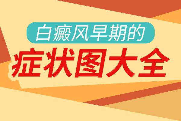南京白癜风医院讲解面部白癜风有哪些主要症状