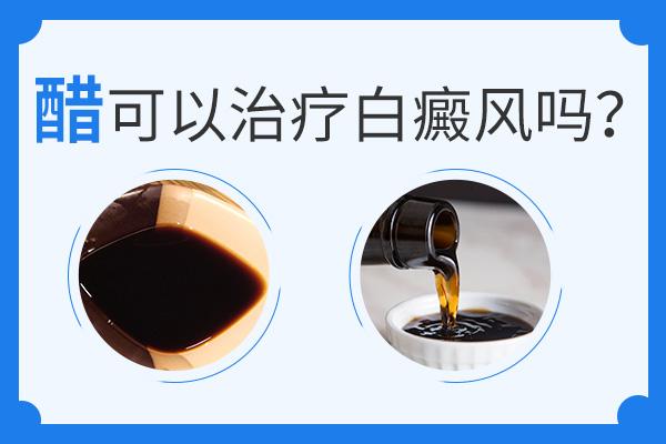 食用醋可以帮助治疗白癜风疾病吗