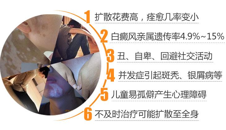 白癜风患者中断治疗会有哪些后果