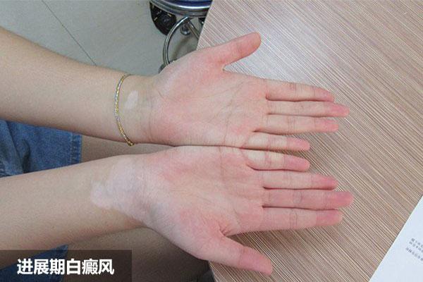手部白癜风治疗