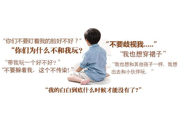 儿童白癜风预防