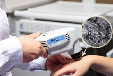 激光治疗白癜风有哪些需