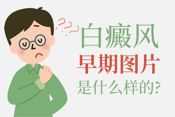 白癜风症状