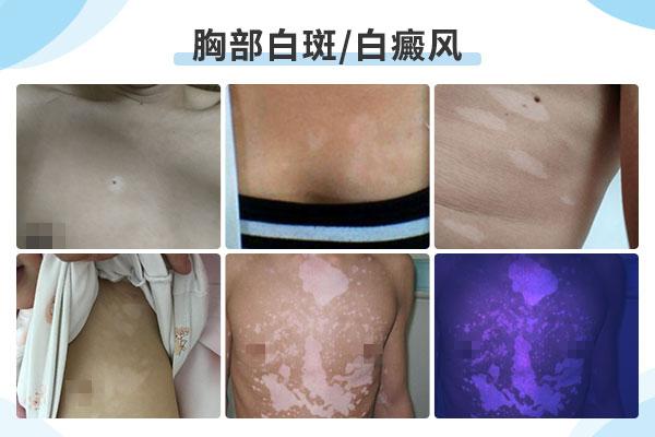 胸部出现白斑应该怎样治疗呢?